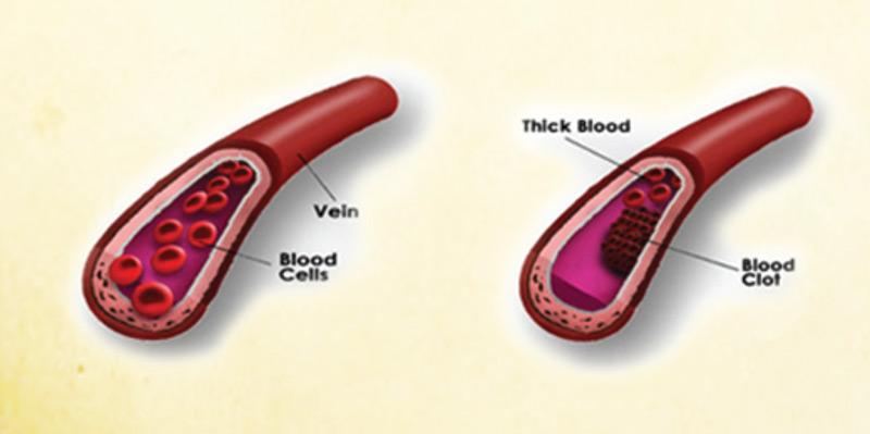 Các mạch máu được khai thông giúp cải thiện tuần hoàn máu, tăng cường sinh lí