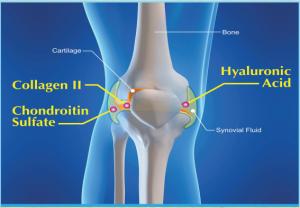 Mô tả kết cấu xương bị thoái hóa khớp