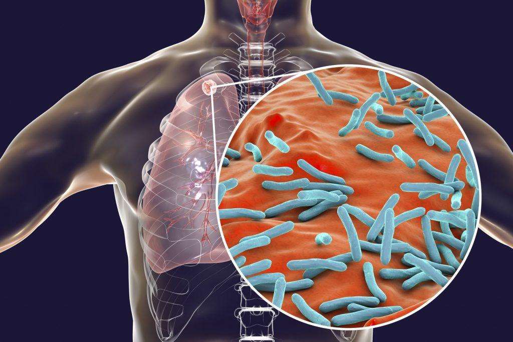 Mô phỏng các vi khuẩn gây nên bệnh ung thư phổi